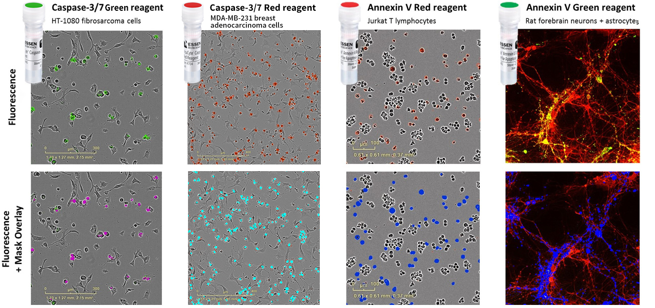 Quantify apoptosis in your choice of cells using IncuCyte apoptosis assays and image analysis tools