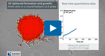 3D-Spheroid Formation, Growth and Shrinkage Using the IncuCyte® Live-Cell Analysis System